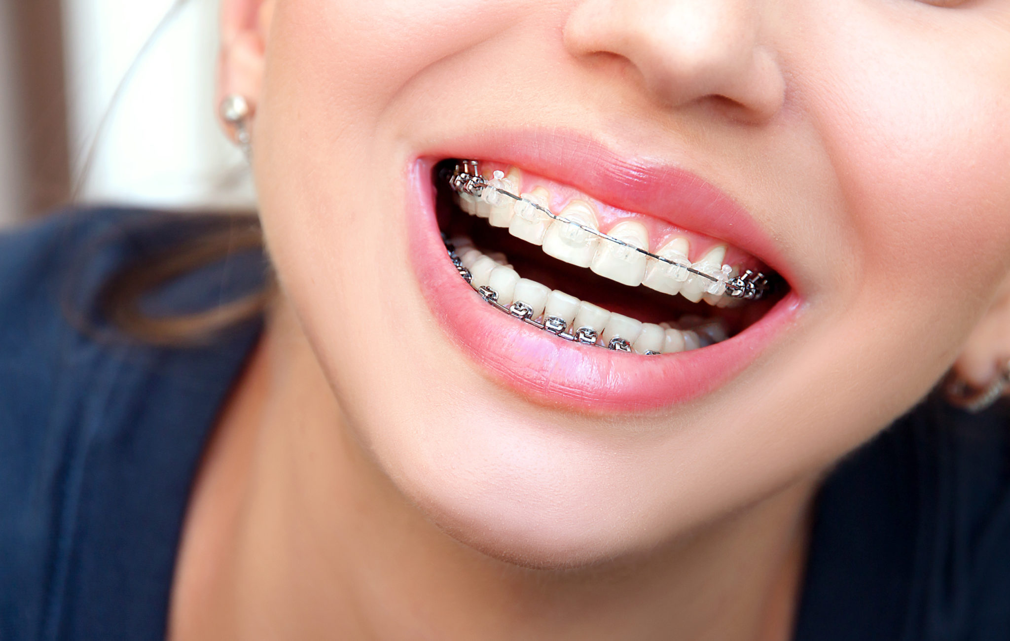 Invisalign gjennomsiktig tannregulering